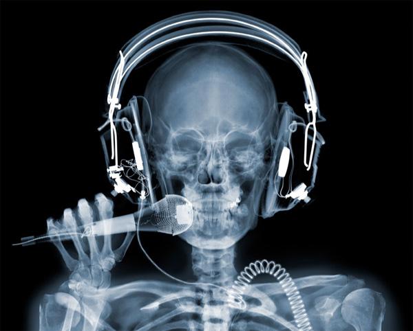 x1a Amazing X Ray Photos