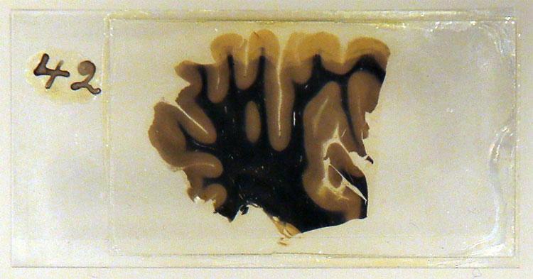 298 Albert Einsteins Brain on Display at London Wellcome Exhibition