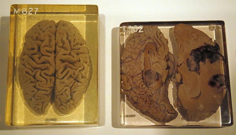 380 Albert Einsteins Brain on Display at London Wellcome Exhibition