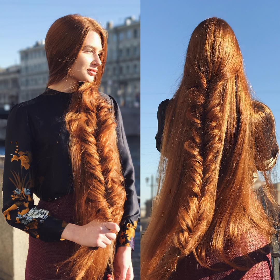 Russian Woman Who Suffered From Alopecia Now Has Beautiful -2846